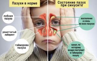 Ингаляции при гайморите детям и взрослым