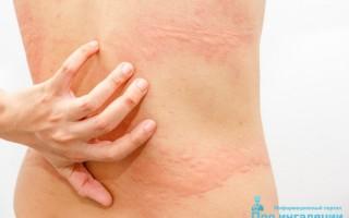 Аллергия на коже — классификация, лечение и профилактика