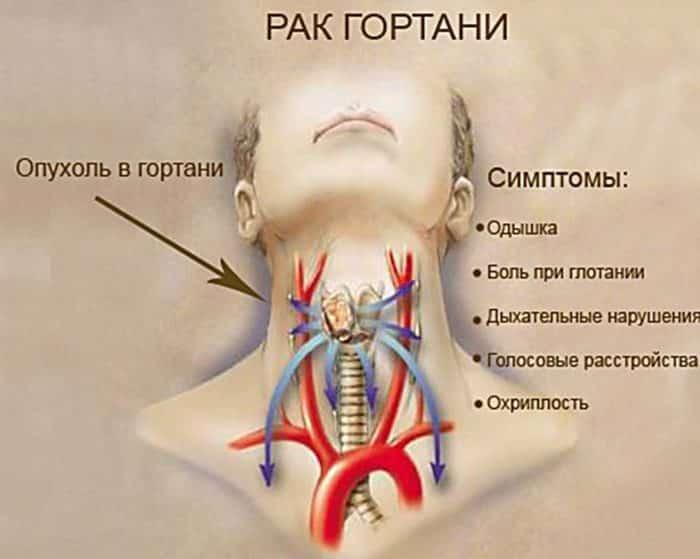 Обычно первым симптомом рака гортани является боль в горле, особенно при глотании.