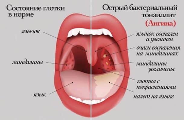 Ингаляции при ангине
