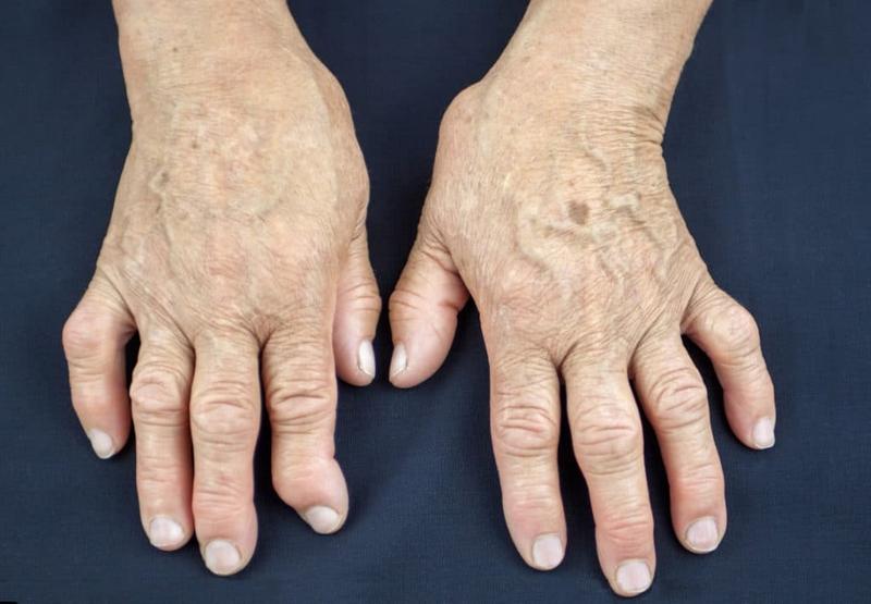 Формы артрита